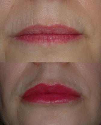 Labbra cinzia prima dopo(frontale )sovrapposte