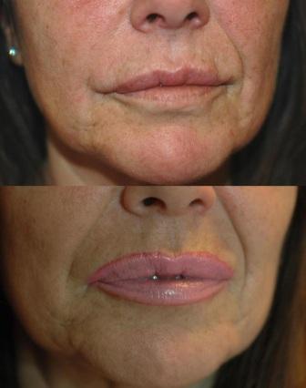 Labbra Ivana Prima dopo frontale sovrapposte
