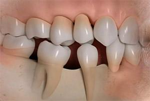 mobilita-denti2