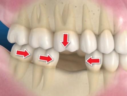 perdita dente 1