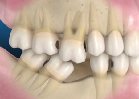 perdita dente 3